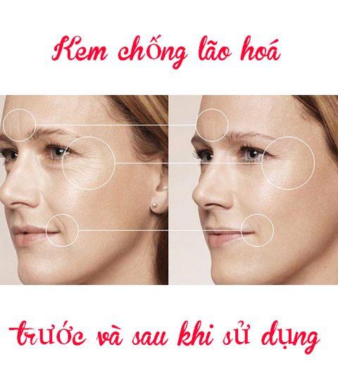 kem-chong-lao-hoa-inno-gialuron