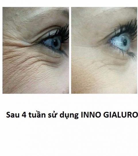 mai-tre-dep-cung-serum-inno-gialuron-1m4G3-tlWOtR_simg_d0daf0_800x1200_max